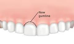 gum-recontouring-250x250