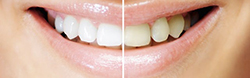 teeth-whitening-250